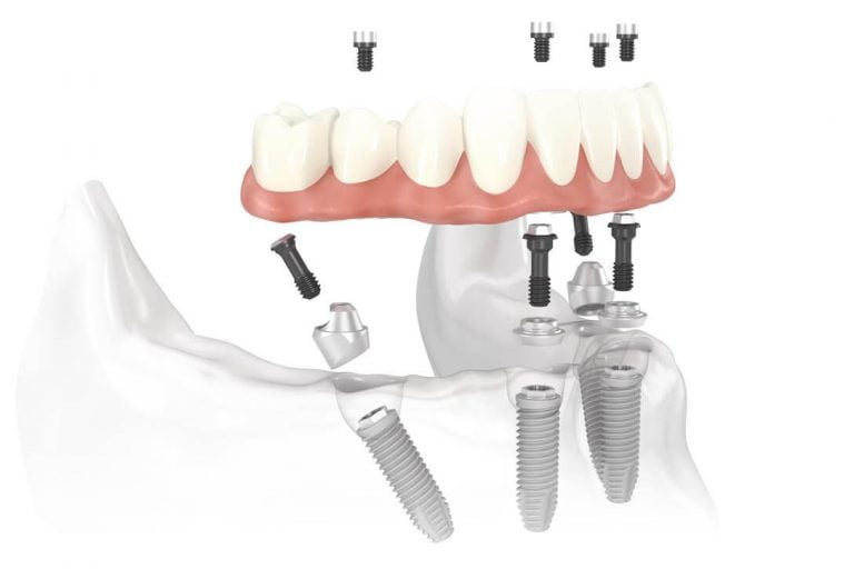 Dental Implants vs Conventional Dentures – The Pros And Cons Discussed