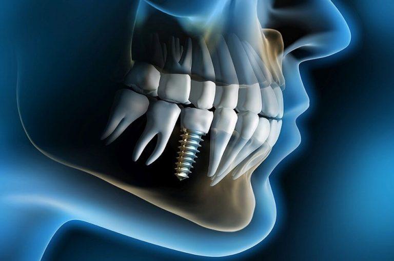 New Dental Breakthrough All-on-four
