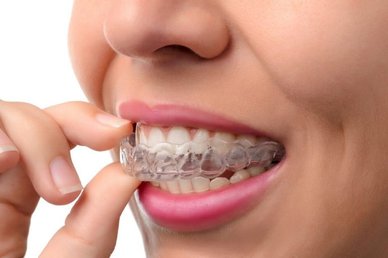Invisalign Aligners vs Conventional Braces  – Which One Should You Choose?